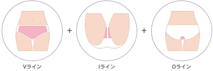 脱毛の範囲 Vライン+Iライン+Oライン